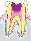 虫歯の進行c3