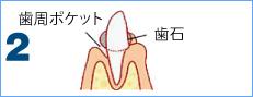 歯周病の進行2