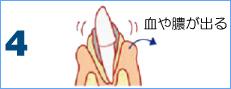 歯周病の進行4