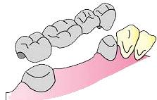 臼歯のブリッジ