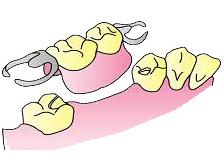 臼歯の部分入れ歯