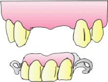 前歯の部分入れ歯